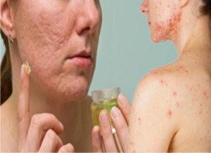 Cómo eliminar secuelas del acné