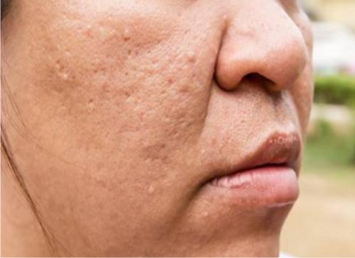 Cómo eliminar huecos en la cara