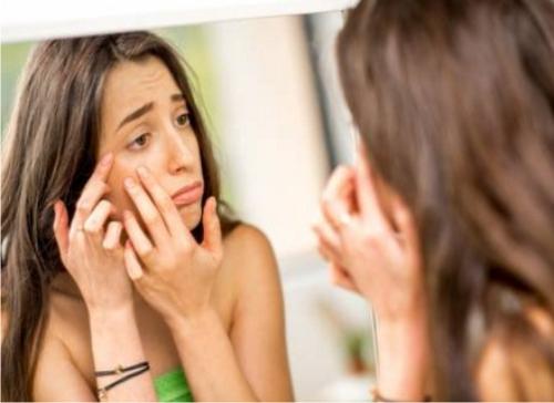 Cómo eliminar los barros de la cara