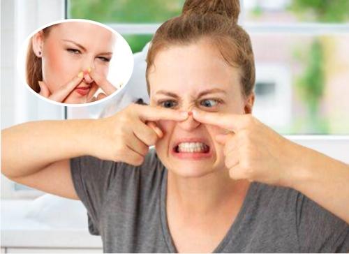 cómo eliminar las espinillas de la nariz