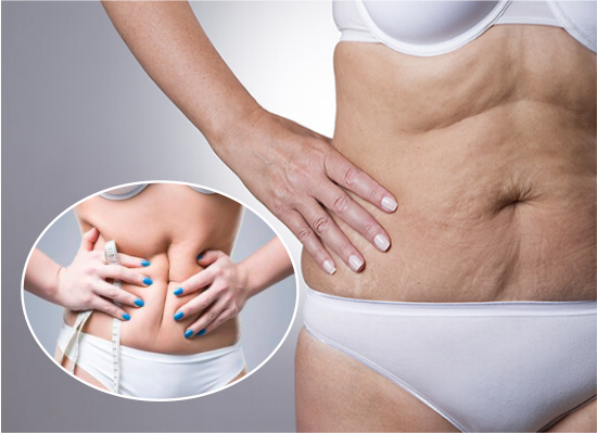Cómo eliminar la celulitis del abdomen
