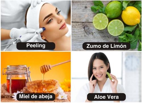 Remedios caseros para eliminar marcas de acné